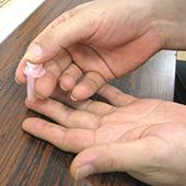 コレステロール測定